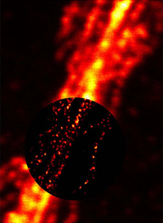 The STED microscopy (circular inset image) provides approximately ten times sharper details of filament structures within a nerve cell compared to a conventional light microscope (outer image). © G. Donnert, S. W. Hell