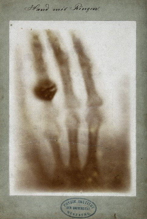 Hand with Rings: a print of one of the first of Wilhelm Röntgen's X-ray photographs