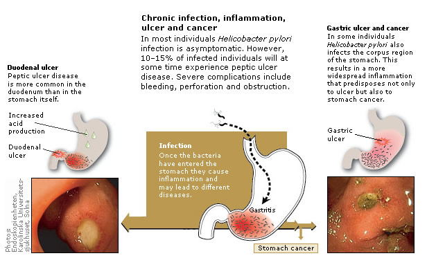 Chronic infection, inflammation, ulcer and cancer