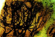 Purkinje cells
