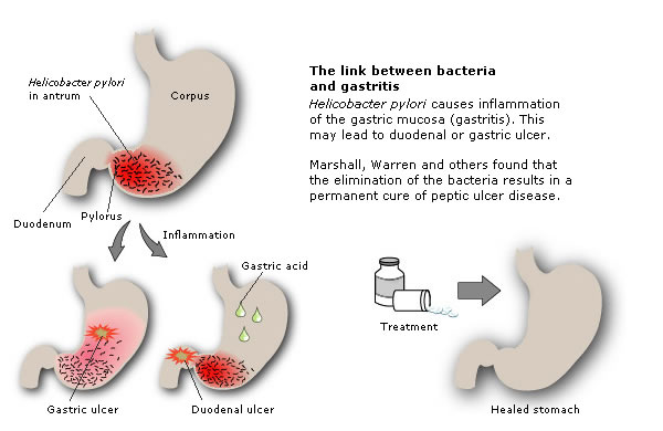 The link between bacteria and gastritis