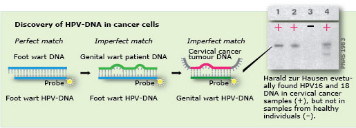 Discovery of HPV-DNA in cancer cells