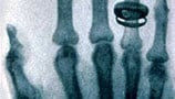 Röntgen rays