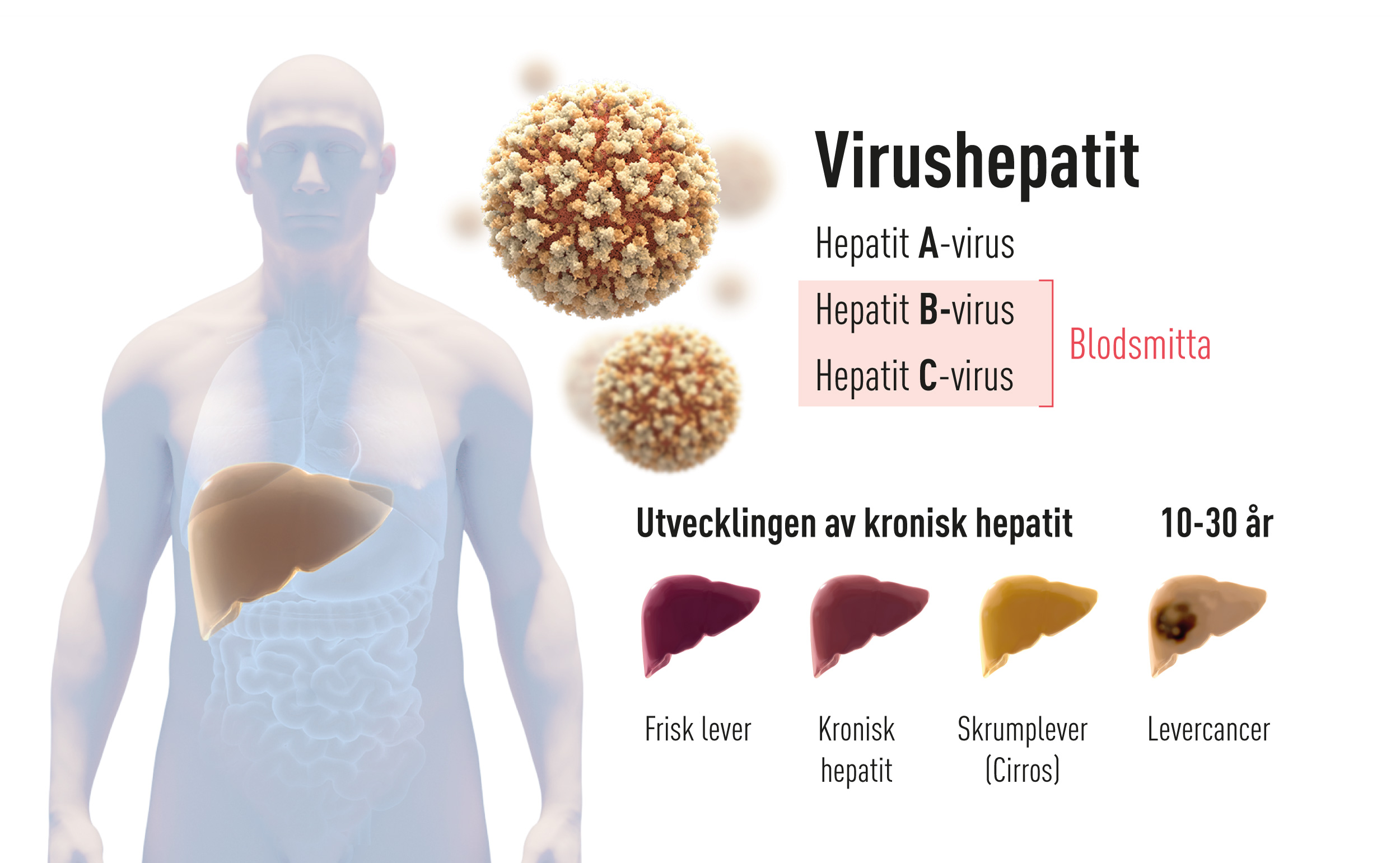 Virushepatit