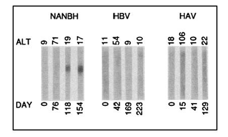 Immunoblots with sequential serum samples
